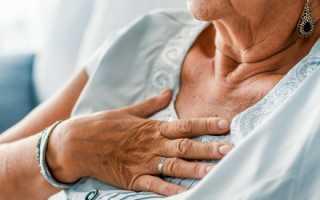 Нормализация психоэмоционального состояния пациентов после инсульта