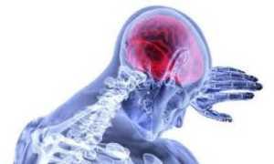 Влияние нарушения нейродинамического аспекта психической деятельности на пациентов с афазией в процессе реабилитации