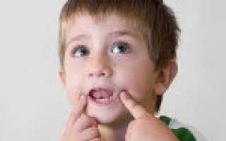 Особенности артикуляции у детей со стертой дизартрией